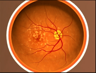 Advanced age-related macular degeneration.